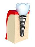 Hersteller Zahnimplantate