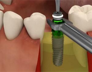 Setzen Zahnimplantat